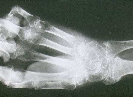 Röntgenaufnahme Morbus Sudeck